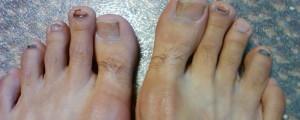 black toe nails